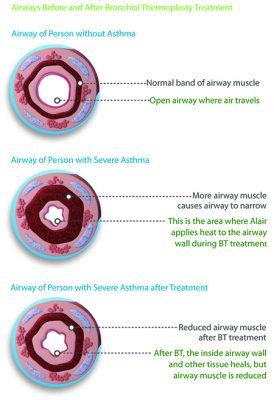 Asthma Severity Chart
