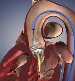 Minimally Invasive Aortic Valve Replacement