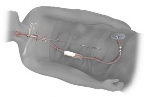 TransCarotidArtery Revasculartion Procedure